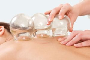 Fire Cupping Therapy